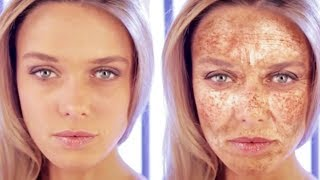 Rays can have dramatic negative effects on your skin. Image source: Cancer Research UK